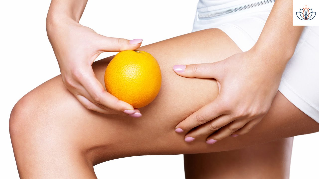 Jambe peau d'orange cellulite