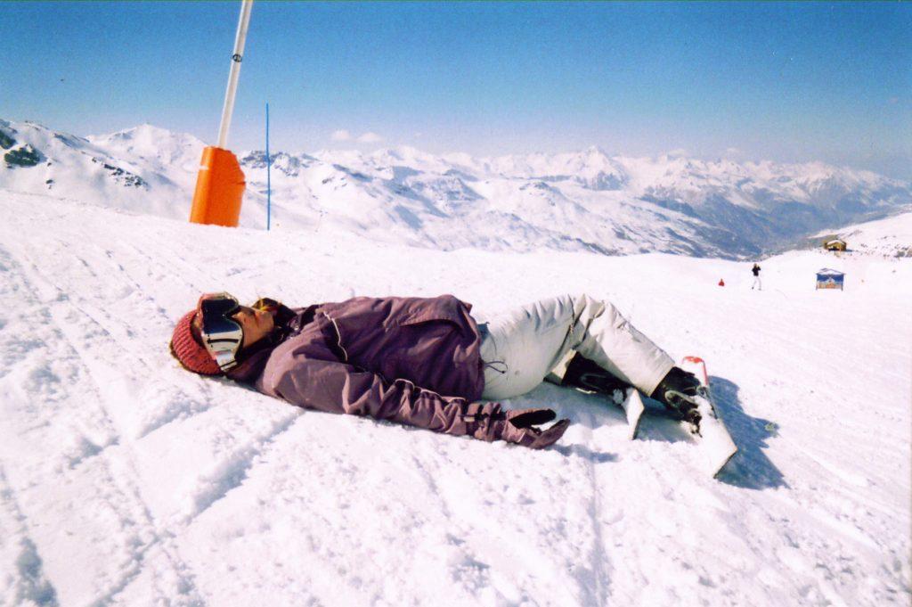 Une skieur avec une rupture du ligament croisé antérieur