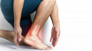 visualisation de l'inflammation de la cheville lors d'une entorse causée par la course à pied